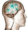 Alzheimer lek
